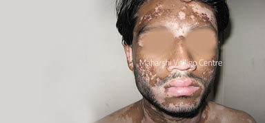 Mumbai - Maharshi Vitiligo Centres | India's Largest Vitiligo Chain